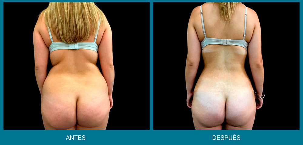 antes y después de tratamiento vaser lipo