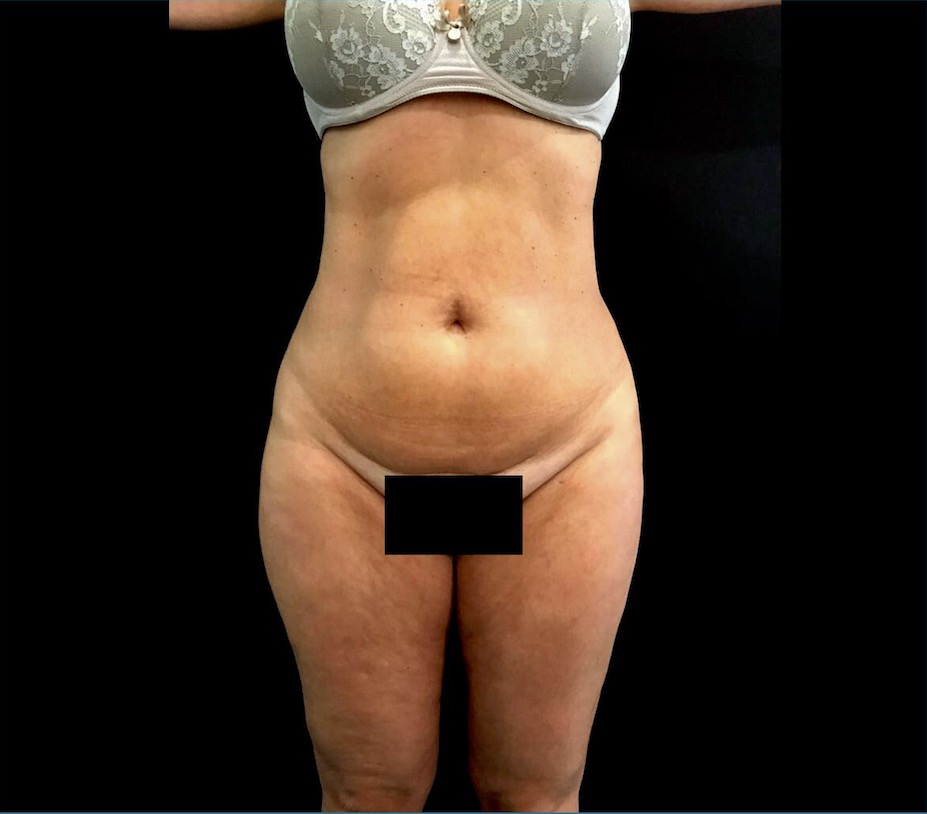 aaclinic-antes-despues-vaser-lipo-3