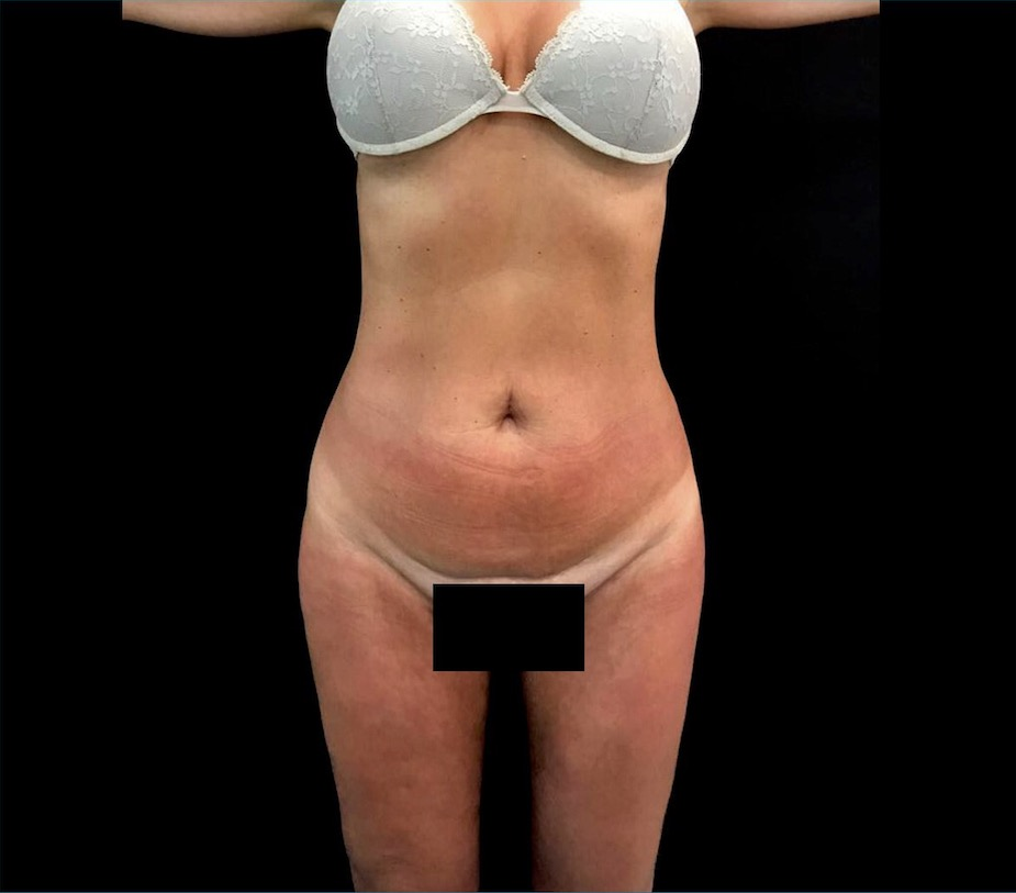 aaclinic-antes-despues-vaser-lipo-4