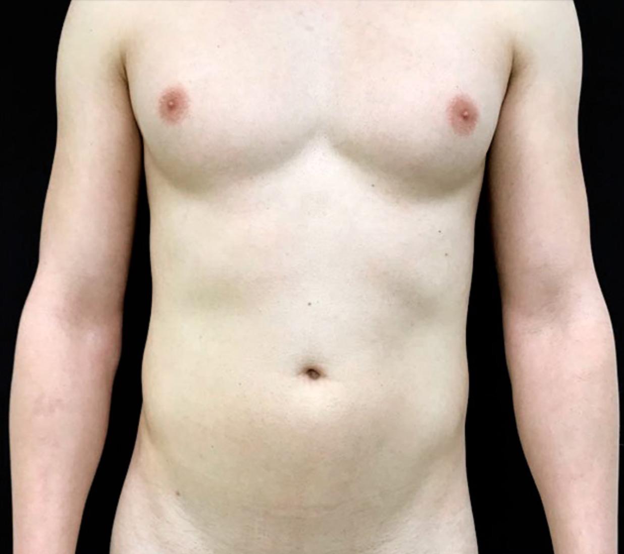 abdomen-y-pect-hombre-vaser-lipo-dr-alejandro-acuna-01