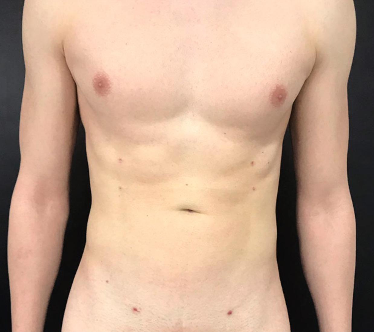 abdomen-y-pect-hombre-vaser-lipo-dr-alejandro-acuna-02